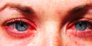 Аллергия на алкоголь - основные симптомы
