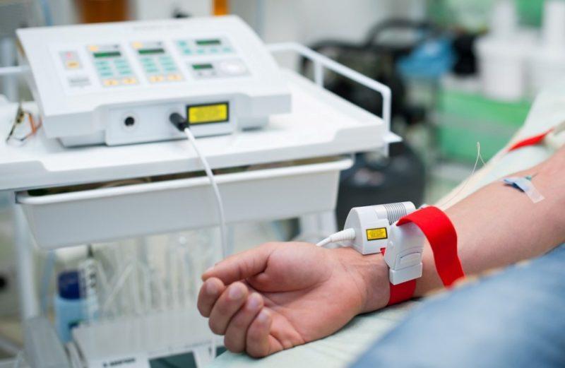 Очищение крови лазером