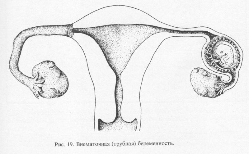 Угроза развития внематочной беременности