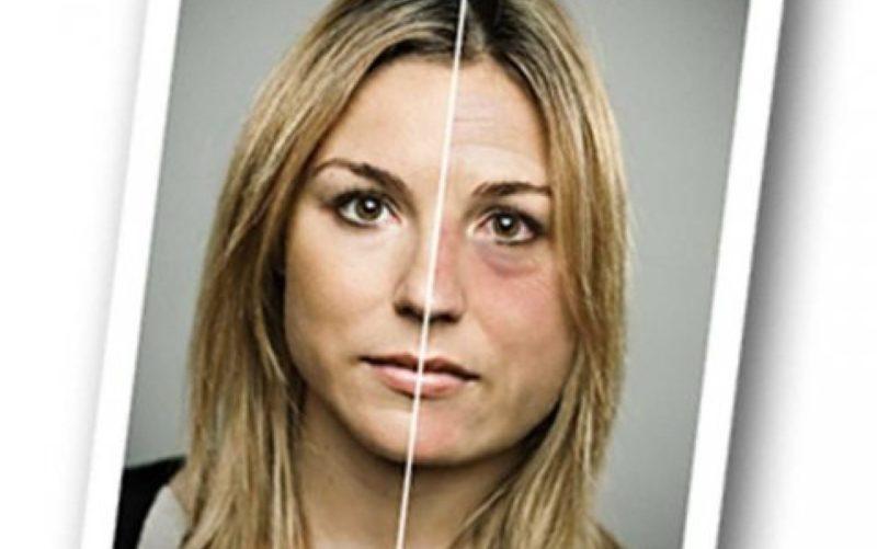 Влияние на внешность
