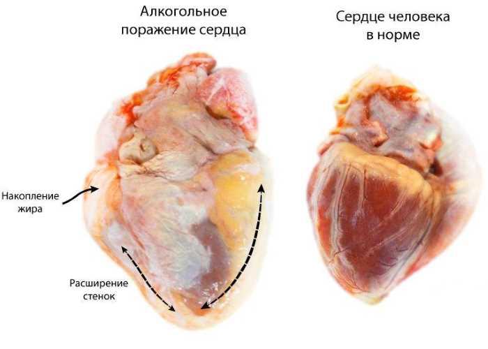 Влияние на сердце
