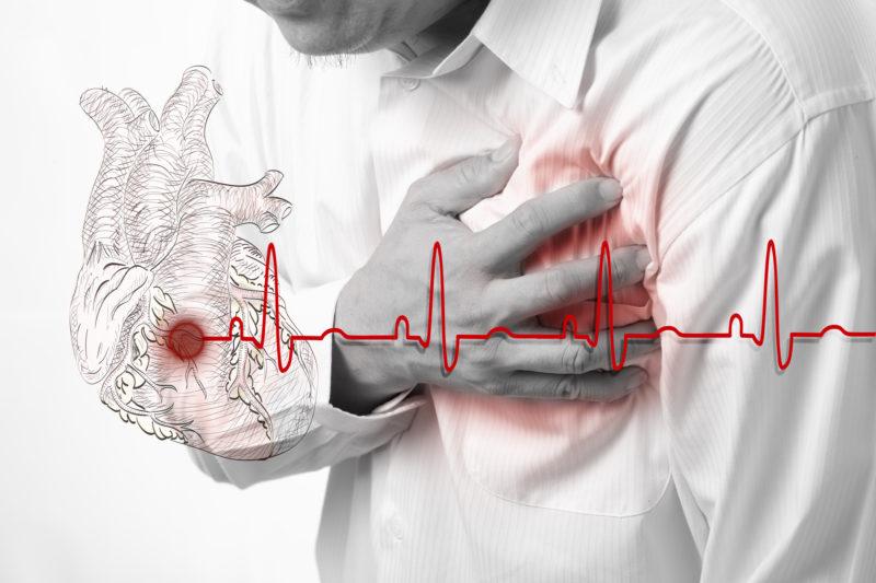 Гипертонический криз: как распознать угрозу — ЗдоровьеИнфо
