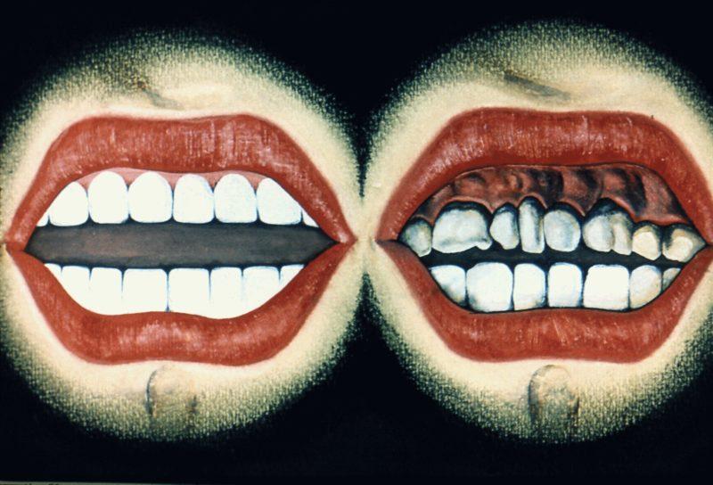 Можно ли курить после лечения зуба